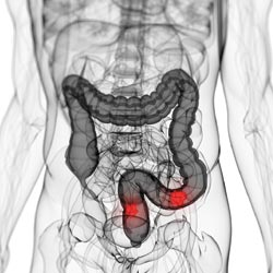 Understanding the Risks of Colon Tumor