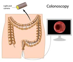 Why People Hesitate To Have Colonoscopy