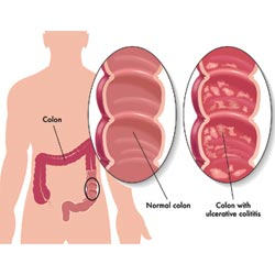 Colon Detox Plus Can Treat Several Upper Colon Problems