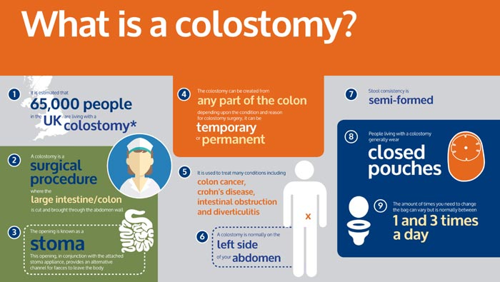 Colostomy Info