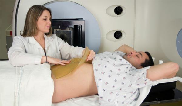 advanced-colon-cancer
