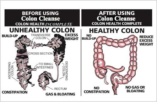 Colon Cleanse Before and After