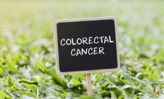 Can Lauric Acid Really Cure Your Colorectal Cancer?