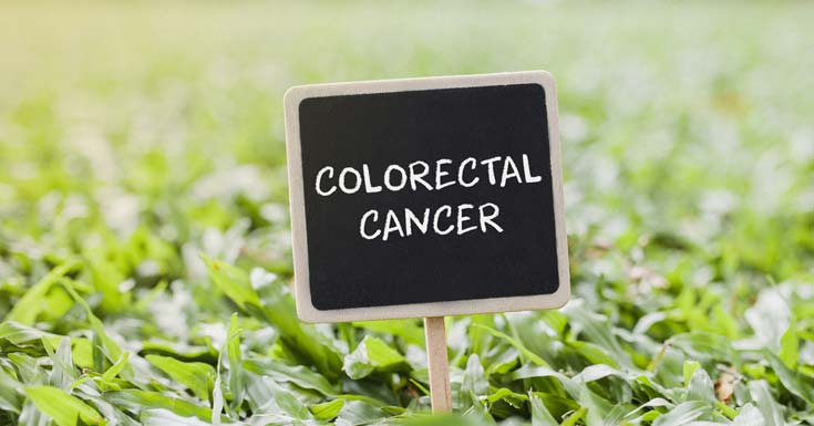 Lauric Acid Really Cure Your Colorectal Cancer