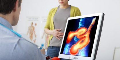 Colon Cancer Screening Age Is 45, Not 50: What Exactly Study Is Saying